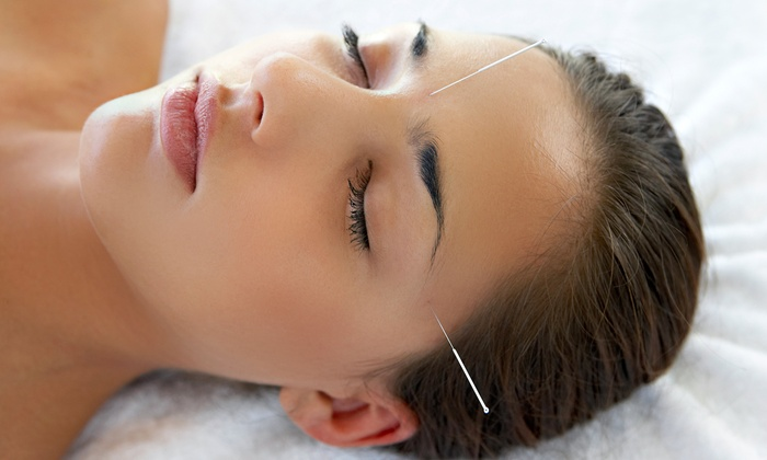 Lowry Community Acupuncture - East Bloomington: Two or Four Acupuncture Sessions at Lowry Community Acupuncture (Up to 74% Off)