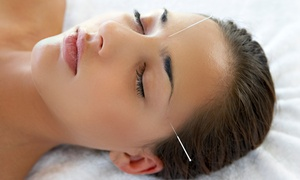 Lowry Community Acupuncture: Two or Four Acupuncture Sessions at Lowry Community Acupuncture (Up to 74% Off)