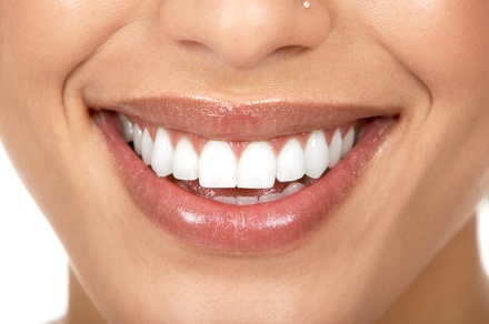 $59 for $99 Worth of Laser TeethWhitening Sessions at Smile Labs