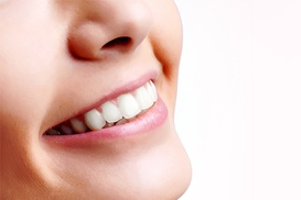 Dental Perfection Branston: Two, Four or Six Dental Veneers at Dental Perfection Branston
