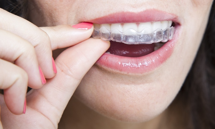 Bleach Party - Saint Louis: $99 for Professional Teeth Whitening at Bleach Party ($249.99 Value)