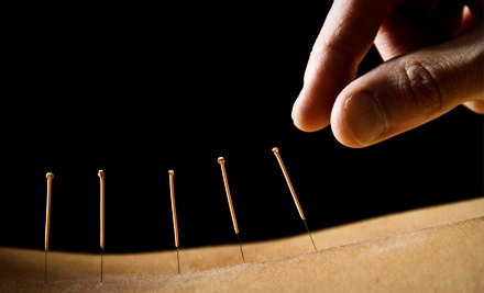 Acupuncture Package Including 15-Minute Consultation & 1 30-Minute Acupuncture Treatment (an $80 value) - Alderney Chiropractic in Dartmouth