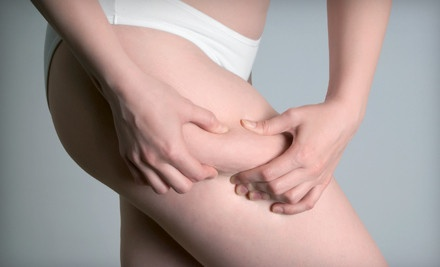 1 Endermologie Cellulite-Reduction Session (a $78 value) - YoungYou Rejuvenation Center in Tarzana