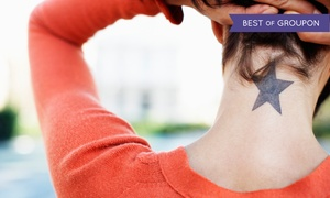 Padda Institute – Center for Laser and Aesthetic Medicine: Three TattooRemoval Treatments at Padda Institute – Center for Laser and Aesthetic Medicine (Up to 73% Off)