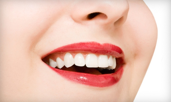 Scott Morris DDS & Associates - North Aurora: $129 for a Venus White Teeth-Whitening Treatment from Scott Morris DDS & Associates in North Aurora ($450 Value)