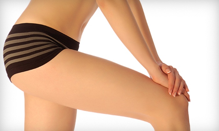 Essential Clinical Aesthetics - Parkland: $249 for Three Zerona Body-Sculpting Treatments at Essential Clinical Aesthetics ($750 Value)