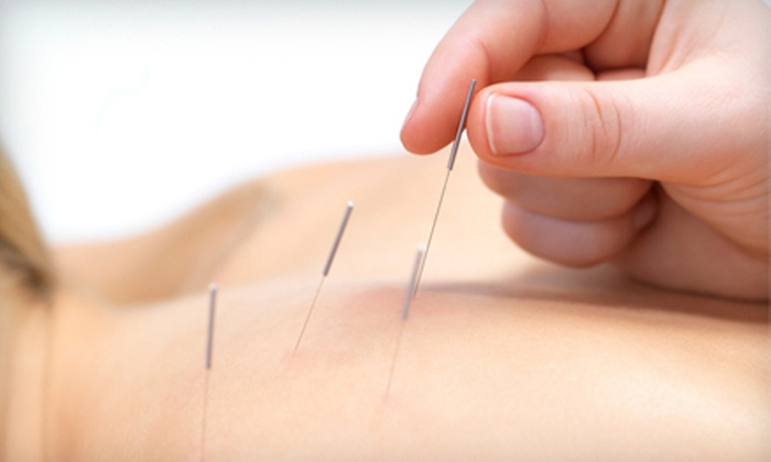 Hornberger Wellness & Chiropractic - Hyde Park Terrace: One or Two Acupuncture Sessions at Hornberger Wellness & Chiropractic in Sarasota (Up to 74% Off)