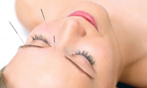 Schwan Chiropractic & Acupuncture: Four or Eight Face-Lift Acupuncture Sessions at Schwan Chiropractic & Acupuncture (Up to 87% Off)