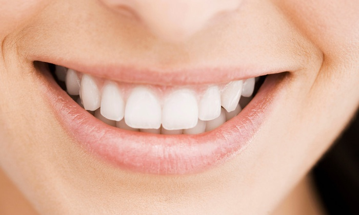 Southern Dental Center - Savannah: Dental Exam Package with Optional Take-Home Whitening Kit at Southern Dental Center (Up to 87% Off)