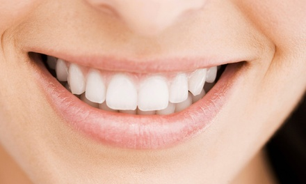 $159 for a Consultation and Whitening Treatment at Gluckstadt Family Dentistry ($500 Value)