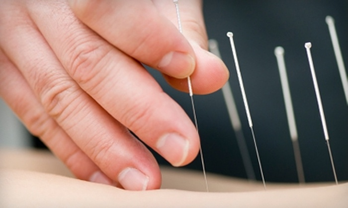 Acupuncture & Systemic Health Center - University Place: $69 for an Acupuncture Facial at Acupuncture & Systemic Health Center in University Place ($150 Value)