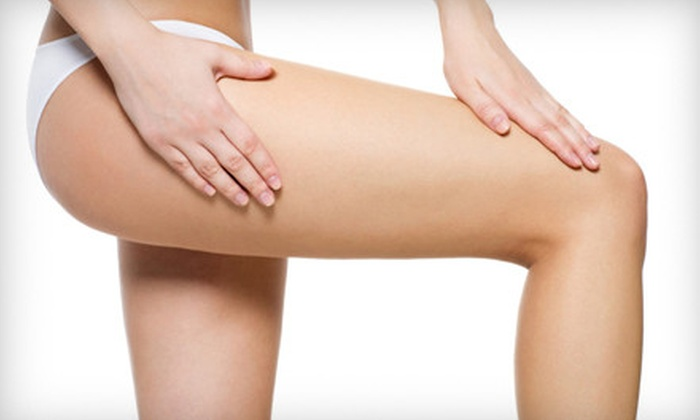 National Laser Institute Medical Spa - Dallas: $79 for Two Laser Spider-Vein Treatments at National Laser Institute Medical Spa ($250 Value)