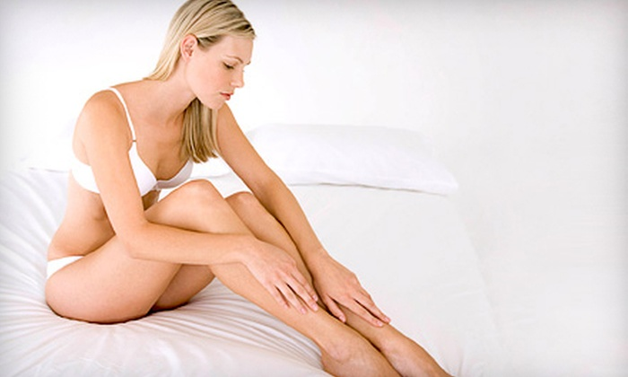 NV Medical Spa - Multiple Locations: Two, Four, or Six Full-Leg Spider-Vein-Removal Treatments at NV Medical Spa (Up to 89% Off)