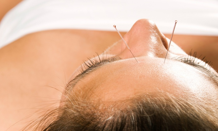 Acupuncture Center of South Florida - Riviera: One Acupuncture Treatment with a Health Evaluation at Acupuncture Center of South Florida ($150 Value)