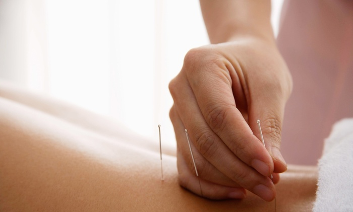 Healing Point Acupuncture - Marshall: Two or Four Acupuncture Sessions with Cupping or Gua Sha Therapy at Healing Point Acupuncture (Up to 65% Off)