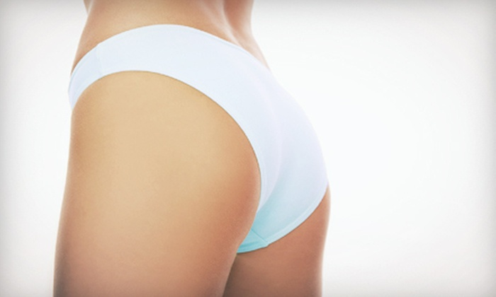 iSilhouette Niagara Falls - Niagara Falls: Two or Three Ultrasonic-Liposuction Treatments on One Body Area at iSilhouette Niagara Falls (Up to 58% Off)