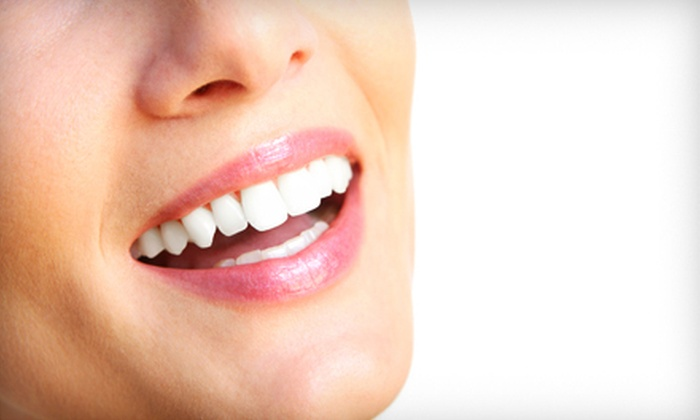 Unique Dental - Multiple Locations: $90 for a Take-Home Teeth-Whitening Kit at Unique Dental ($300 Value)