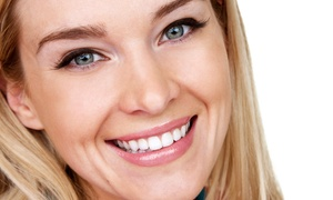 Your Family Dental Office: CC$95 for Oral Exam with Teeth Whitening, Polish, and Fluoride at Your Family Dental Office (CC$399 Value)