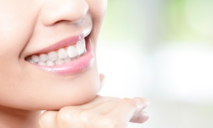 Limpieza bucal con ultrasonidos o con limpieza de encías en 1 o 2 arcadas desde 12 € en Clínica Dental Goya, 116