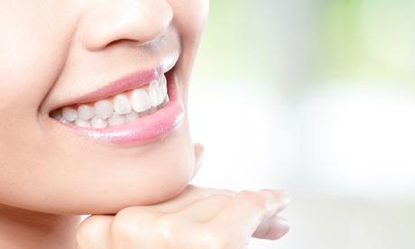 Limpieza bucal con ultrasonidos o con limpieza de encías en 1 o 2 arcadas desde 12 € en Clínica Dental Goya, 116 Oferta en Groupon