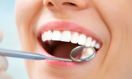 $49 for Dental Exam with Dr. Anthony Mendez ($320 Value)