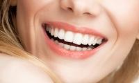 1x oder 2x kosmetisches Zahnbleaching für 1 Person bei Kelebek At Minnahs Beauty (bis zu 73% sparen*)