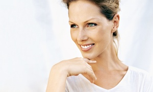 Marie Monet European Day Spa: One, Two, or Three Jessner Peels at Marie Monet European Day Spa (Up to 78% Off)