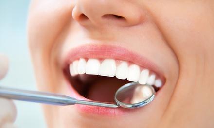 Pulizia denti e sbiancamento led a 24,90€euro