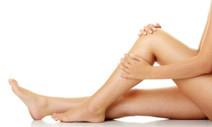 Bodhi Laser: Spider Vein Removal from R299 at Bodhi Laser (Up to 75% Off)