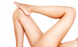 All in one Laser: Two or Four 20-Minute Laser Spider-Vein-Removal Treatments at All in One Laser (Up to 81% Off)