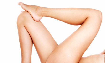 Two or Four 20-Minute Laser Spider-Vein-Removal Treatments at All in One Laser (Up to 81% Off)