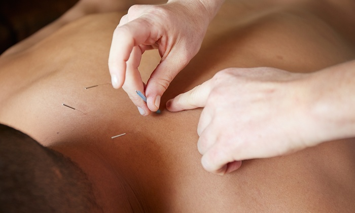 Simple Health Acupuncture - Cal Heights - Bixby Knolls - Los Cerritos: One or Three Acupuncture Treatments with a Consultation and Cupping at Simple Health Acupuncture (Up to78% Off)