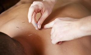 Manifest Wellness: Acupuncture Treatment with Optional 30-Minute Massage at Manifest Wellness (Up to 69% Off)