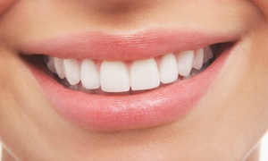 Corbet Locke, DDS: $69 for a Dental Exam with Cleaning and Whitening Strips from Corbet Locke, DDS ($250 Value)