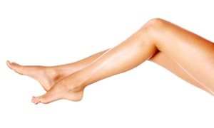 Skin Embrace Medical Spa & Laser Center: $149 for Four Laser Spider-Vein Removal Treatments at Skin Embrace Medical Spa & Laser Center ($640 Value)