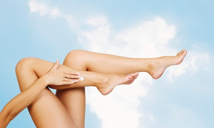 Laser Hair Removal at Lavender Med Spa (Up to 93% Off). Three Options Available.