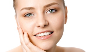 Effleurage Skincare & Laser Med Spa: One, Two, or Four IPL Photofacials at Effleurage Skincare & Laser Med Spa (Up to 82% Off)