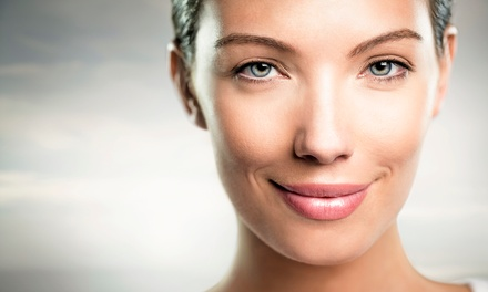 Three or Six Custom Chemical Peels at Esthetic Skin Care (Up to 69% Off)