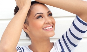 Glam Chixx Beauty Bar: $59 for a 60-Minute In-Office Teeth-Whitening Treatment at Glam Chixx Beauty Bar ($125 Value)