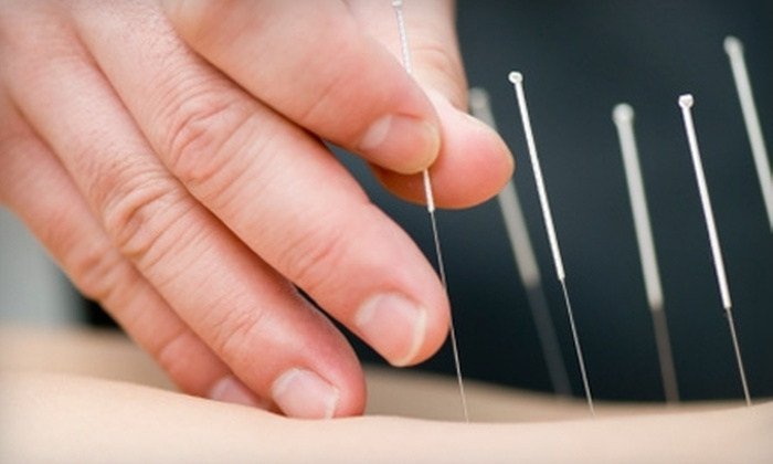 Village Community Acupuncture - Van Nuys: $30 for Two Full-Body Acupuncture Treatments at Village Community Acupuncture in Sherman Oaks ($70 Value)