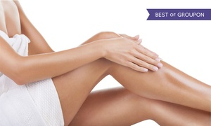Elite Medical Cosmetic Centers: Two or Four Sclerotherapy Spider-Vein Removal Treatments at Elite Medical Centers (77% Off)