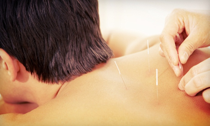 Total Rejuvenation Center - Downtown Scottsdale: One, Two, or Three Acupuncture Sessions with a Consultation at Total Rejuvenation Center (Up to 77% Off)