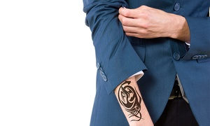 Erasable Inc.: $85 for $190 Toward Laser Tattoo-Removal Treatments at Erasable Inc.