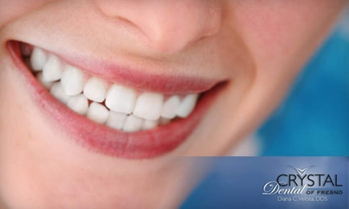 Crystal Dental of Fresno - Woodward Park: $90 for Take-Home Teeth Whitening at Crystal Dental of Fresno ($500 Value) or $49 for Full Exam, Oral Cancer Screening, X-Rays, and Cleaning ($308 Value)