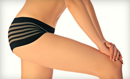 Exilis Body-Contouring Treatment (a $500 value) - Skin Technology in Irving