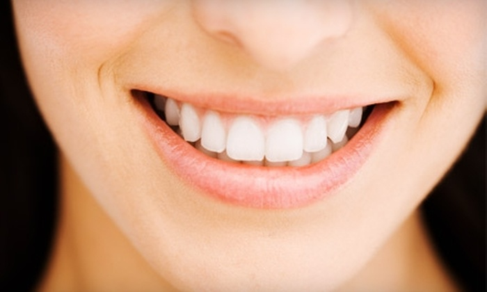 Healthy Smiles Dental - Lancaster: Dental Exam and Cleaning or Take-Home Teeth-Whitening Kit at Healthy Smiles Dental in Lancaster
