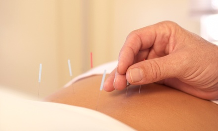 Holistic Healthcare Packages at Acupuncture Associates of Plantation, Inc. (Up to 80% Off). Two Options Available.
