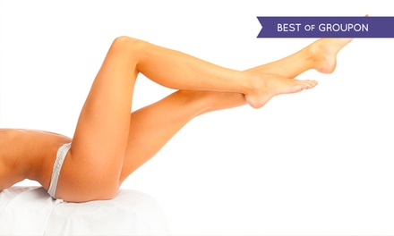 Six Sessions of IPL Hair Removal at N1 Beauty Lounge (Up to 91% Off) (London)