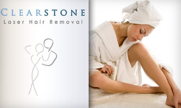 Clearstone Laser Hair Removal - Neartown/ Montrose: $150 for Four Laser Hair-Removal Sessions at Clearstone Laser Hair Removal (Up to $550 Value)
