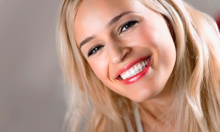 C$79 for a Light-Activated Teeth-Whitening Treatment at Nu Age Dental Hygiene Clinic (C$450 Value)